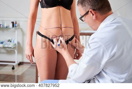 Focus On Doctors Hand Drawing Line On Her Bare Skin And Marks On Female Body Before Plastic Surgery.