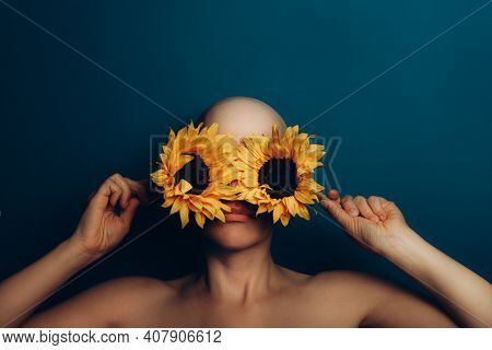 Bald Woman Is Covering Her Eyes With Yellow Sunflowers, Faceless Concept To Show Alopecia Or Other H