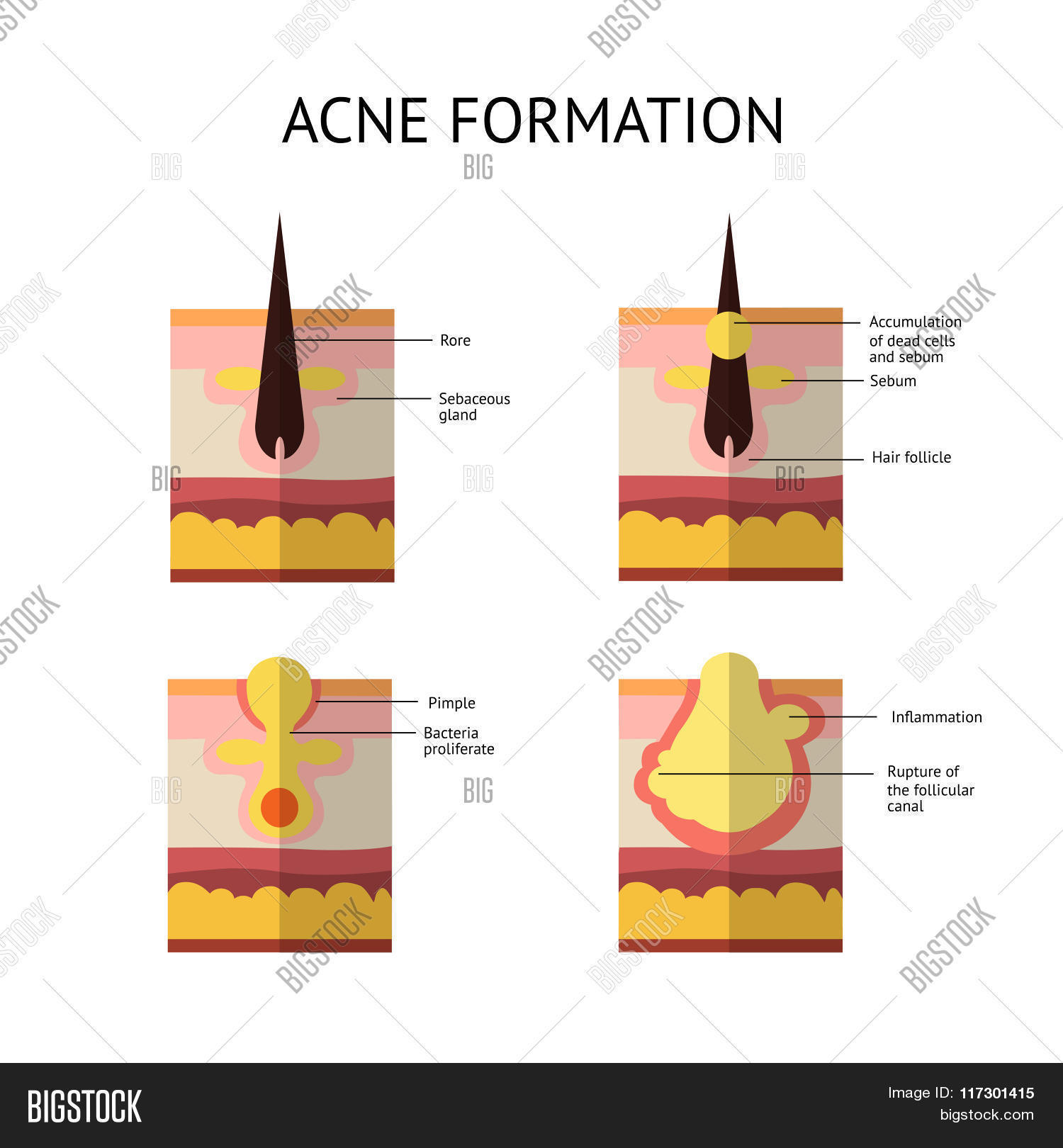 Formation Skin Acne Vector & Photo (Free Trial) | Bigstock