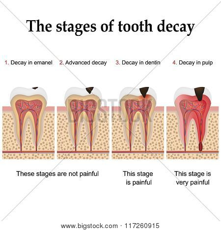 Tooth decay formation step by step forming dental plaque and finally caries and cavity poster