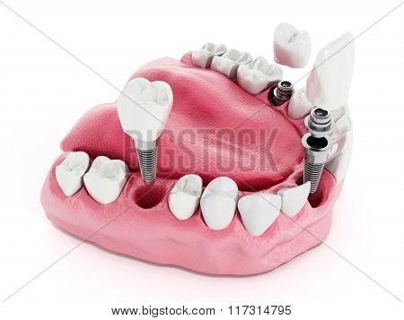 Dental Implant Detail