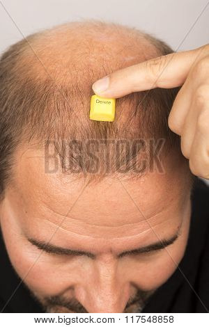 man controls hair loss stress alopecia cancer treatment poster