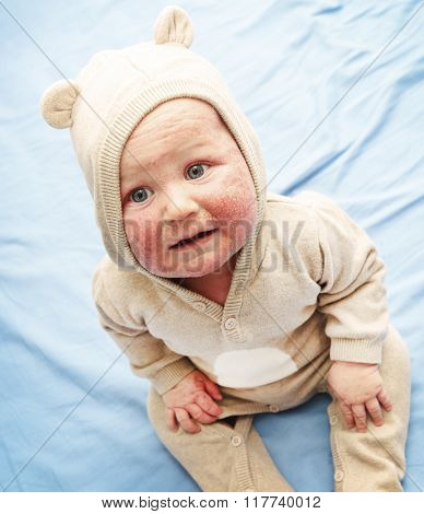 Little baby with dermatitis on face