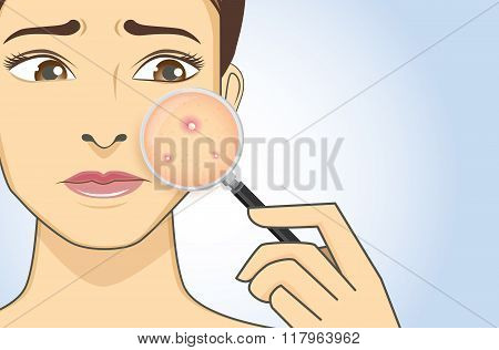A magnifier on hand magnifying the woman facial to finding acne on her face area. She have feeling stress because acne. poster