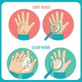 Dirty Hands. Clear Hands. Before And After. Hand Hygiene Flat Vector Icons In The Circle. Dirty Hands Tools. Hands Clean. Sign Of Clean. Unclean Hands. Unclean Hands Defence. Unclean Hands Discovery. poster
