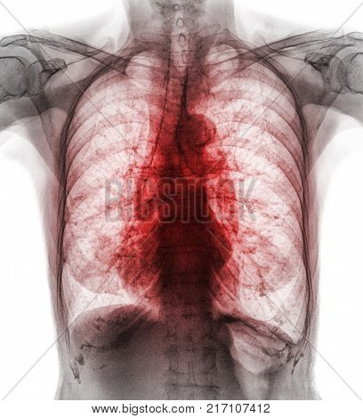 Pulmonary Tuberculosis . Film chest x-ray show interstitial infiltrate both lung due to Mycobacterium tuberculosis infection .
