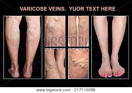 Painful varicose veins, ,spider veins, varices on a female leg. Ageing, old age disease, aesthetic problem concept. poster