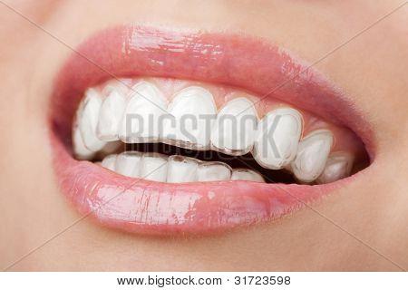 Zähne mit Bleaching Fach