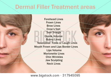 Anti-aging, Beauty Treatment, Aging And Youth, Lifting, Skincare, Plastic Surgery Concept. Filler Tr