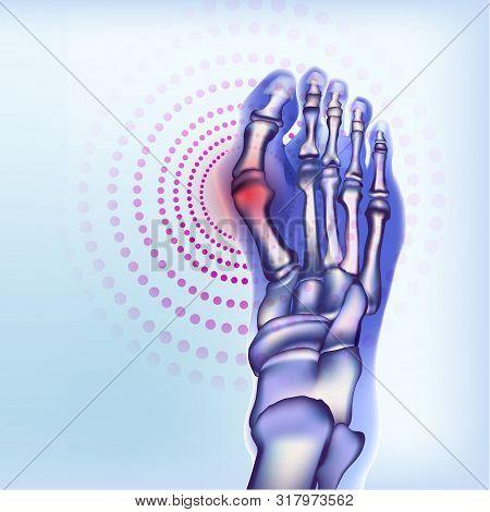 Rheumatoid Artritic Sore Joints Concept. Realistic Bones Of Foot Skeleton Of Human Leg. Light Blue B