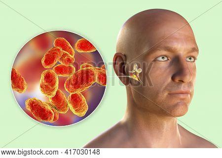 Haemophilus Influenzae Bacterium As A Cause Of Otitis Media. 3d Illustration Showing Purulent Inflam