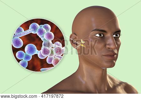 Candida Fungi As A Cause Of Otitis Media. 3d Illustration Showing Purulent Inflammation Of The Middl