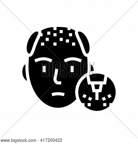 Baldness Disease Line Icon Vector. Baldness Disease Sign. Isolated Contour Symbol Black Illustration