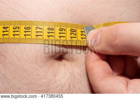 Obesity. Measurement Of The Waist Volume By A Centimeter When Overweight. Overweight