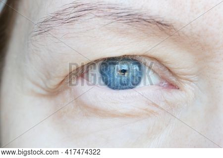 Middle Aged Female's Eye With Drooping Eyelid. Ptosis Is A Drooping Of The Upper Eyelid, Lazy Eye. C