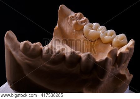Mold Of Teeth. Gypsum Model Plaster Of Teeth. Plaster Cast Of Teeth From Human In Preparation For Pr