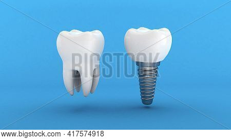 Dental Implant. White Tooth And Implant On A Blue Background. 3d Renderю
