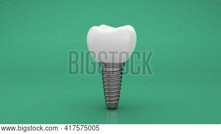 Dental Implant. Denture. Green Background. 3d Render.