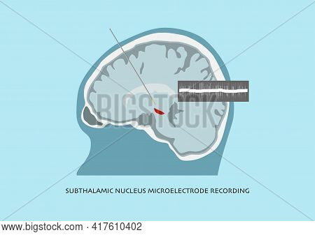 Illustration Of Microelectrode Recording And Brain Waves Recorded In Subthalamic Nucleus Or Stn For