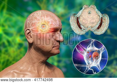 An Old Man With Parkinson's Disease And Highlighted Black Substance Of The Midbrain. 3d Illustration