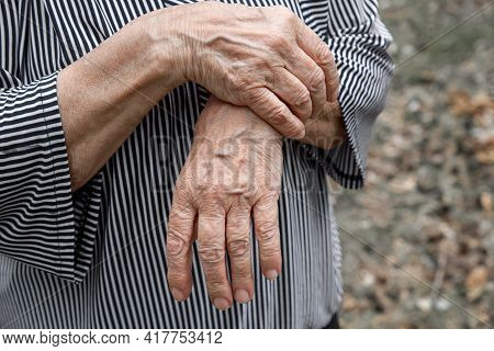 Close-up Of Old, Wrinkled And Arthritic Female Fingers. Hands Of An Elderly Person
