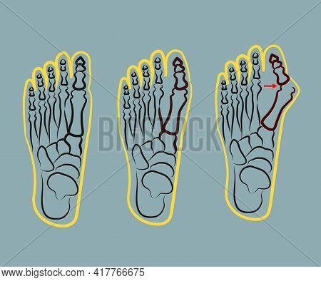 Human Foot. Improper Bone Fusion. Symbol. Vector Illustration.