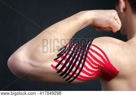 Young Caucasian Man Showing Bicep With Kinesiology Medical Tape Applied To Relieve Pain On Dark Back