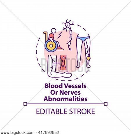 Blood Vessels And Nerves Abnormalities Concept Icon. Amputation Cause Idea Thin Line Illustration. N