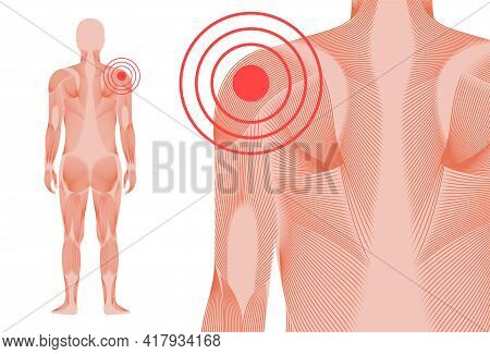 Pain In Shoulder Or Scapula. Muscular System Man Silhouette. Joints And Cartilage In Human Body. Inf