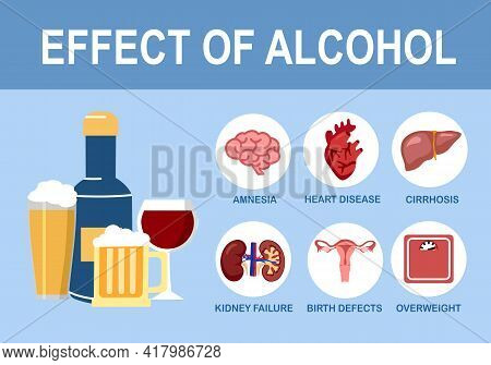 Effects Of Alcohol On Human Body Infographic In Flat Design. Alcoholism Disease Health Care Concept.
