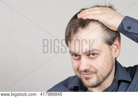 The Man Shows A High Forehead With Receding Hairline. Baldness In Men, Hair Care. With Place For Tex