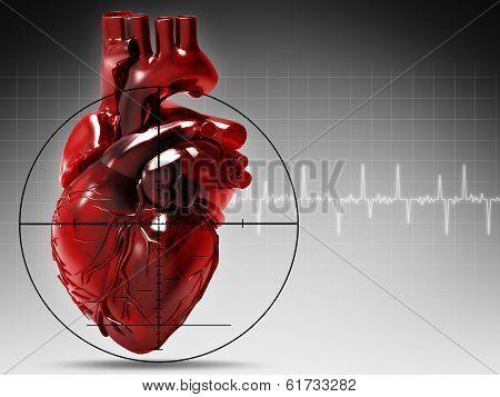 Human Heart Under Attack