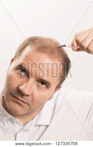 Baldness Alopecia man hair loss haircare medicine bald treatment transplantation