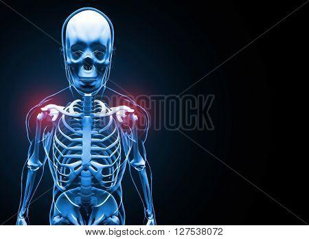 X-ray Shoulder Pain Skeleton 3D illustration on black background.