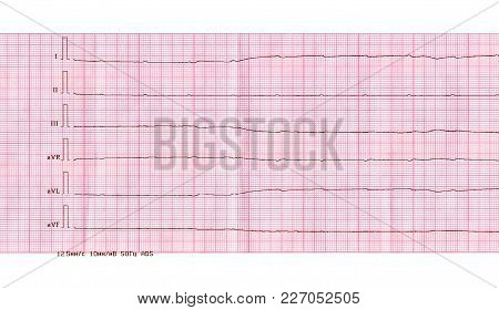 Emergency Cardiology And Resuscitation. Ecg Tape With Ventricular Asystole