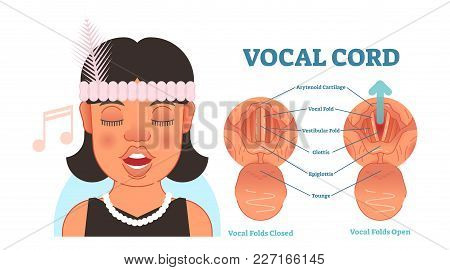 Vocal Cord Anatomy Vector Illustration Diagram, Educational Medical Scheme With Vocal Folds.