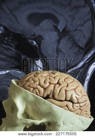 Brain Model And Mri Picture