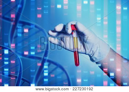 Analysis Of Dnk. A Hand In A Medical Glove Holds A Test Tube With Dna. Bacteriological Studies In Th