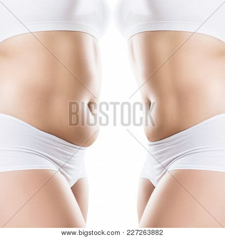 Collage Of Female Body Before And After Weight Loss Over White Background