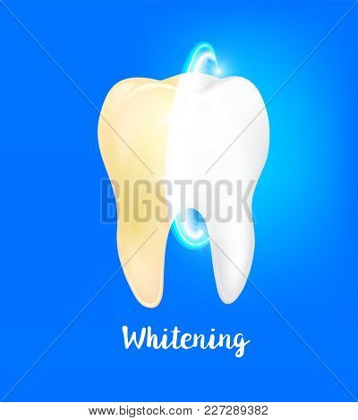 Cleaning Dirty Tooth On Blue Background, Clearing Tooth Process. Tooth Whitening, Dental Care Concep