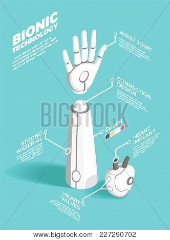 Bionics Technology Isometric Composition Illustrating Implants Prosthesis Materials And Connection D