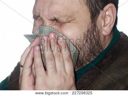 A Sick Bearded Man In A Fur Vest Sneezes In A Handkerchief
