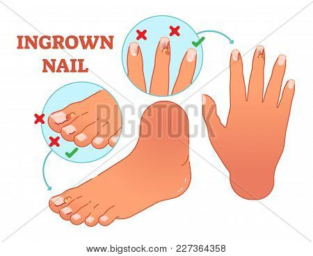 Ingrown Nail Medical Vector Illustration With Foot And Hand Fingers.