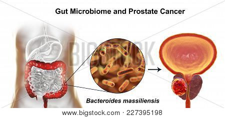 Gut Microbiome And Prostate Cancer, 3d Illustration Showing Association Of Bacteroides Massiliensis