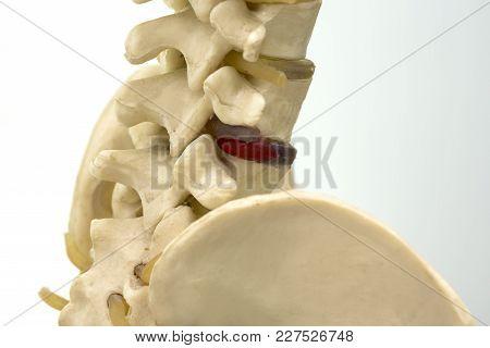 Close-up Side View Of Human Lumbar Vertebra Model Demonstraing Herniated Vertebral Disc Compression