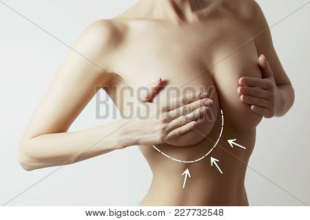 Beautiful Female Body With Surgery Marks On Breast