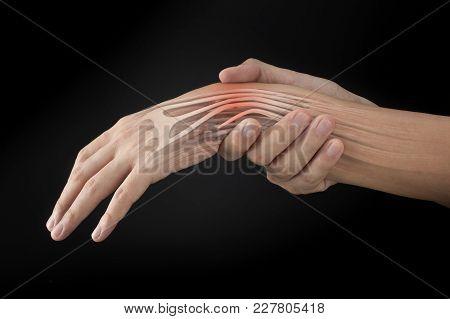 Wrist Muscle Injury White Background Wrist Pain