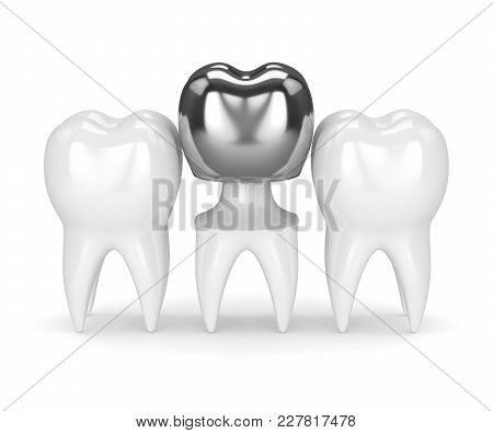 3D Render Of Teeth With Dental Crown Amalgam Filling