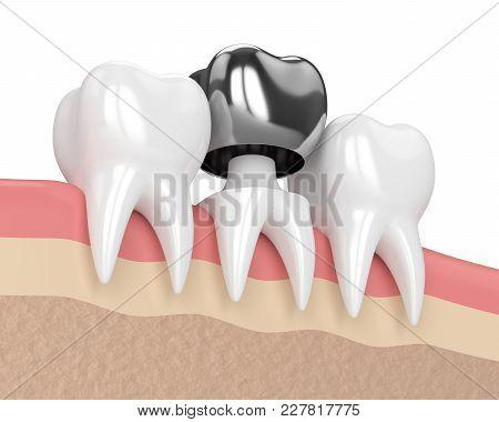 3D Render Of Teeth With Dental Crown Amalgam Filling