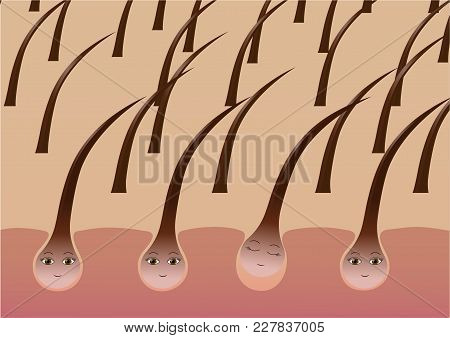 Cartoon Hair Follicles On The Scalp Suffer From Loss. Vector Illustration
